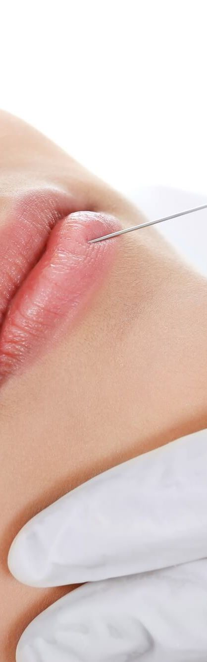 Treating Cellulite with Cellulaze™